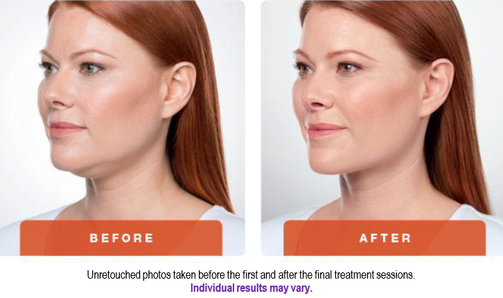 Kybella_Before&After