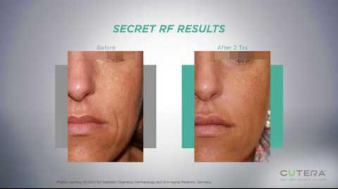 Introducing Secret RF